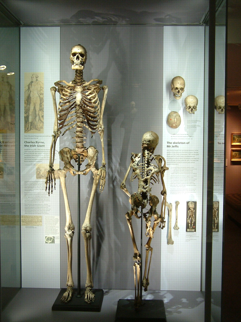 The fact that his skeleton is in this display gives you a hint about why Charles Byrne was afraid of John Hunter.... (Image: The History Blog)